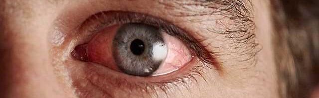 коньюткивит глаз у взрослого