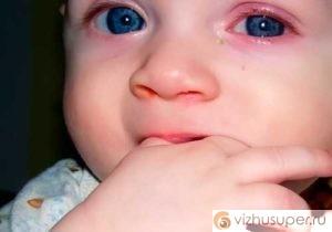 блефарит у ребенка