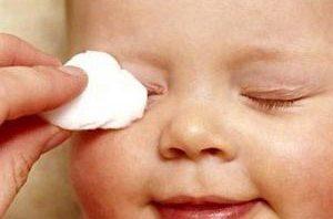 У новорожденного гноиться глаз чем лечить в домашних условиях 202