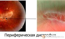 Перефирическая дистрофия глаза