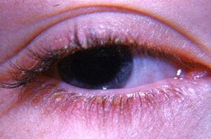 грибковое заболевания глаз