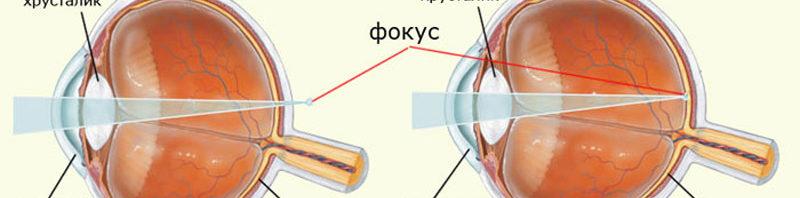 гиперметропия и нормальное зрение