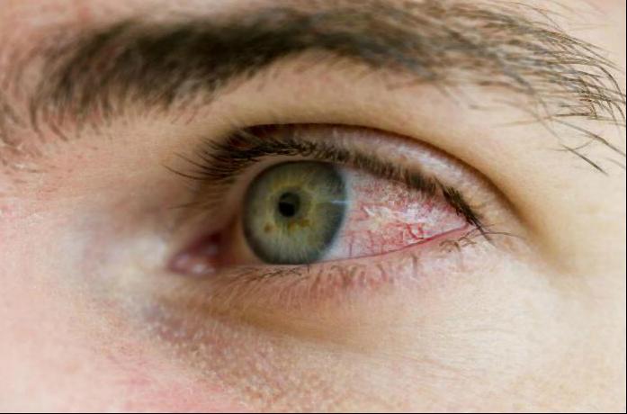 химический ожег глаза