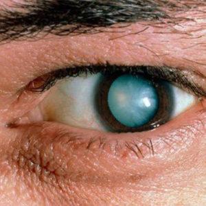 катаракта у взрослых