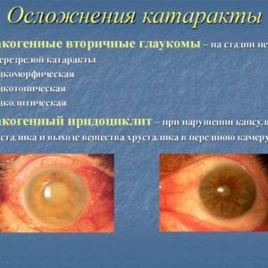 осложнения катаракты