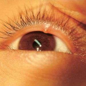 Признаки ячменя на глазу на начальной стадии