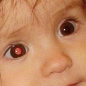 ретинобластома у детей прогноз