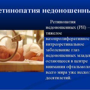 Ретинопатия недоношенных лечение
