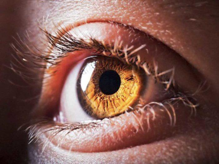 отслоение сетчатки глаза что это такое