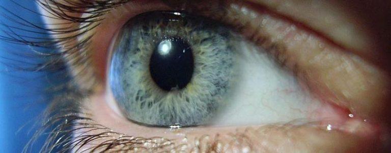 Краевой кератит глаза