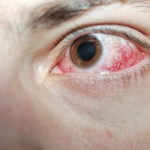 Архивы Заболевания глаз - Страница 2 из 9 - Вижу супер