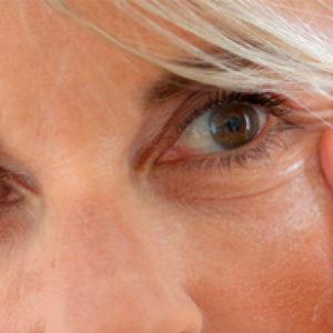 Что такое куриная слепота у человека