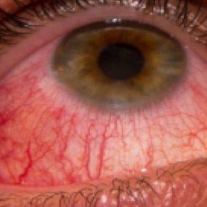 вирусный кератит глаза