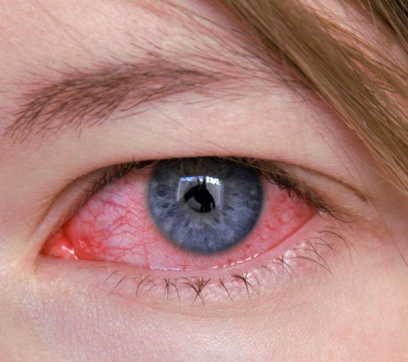 кератит симптомы и лечение у человека