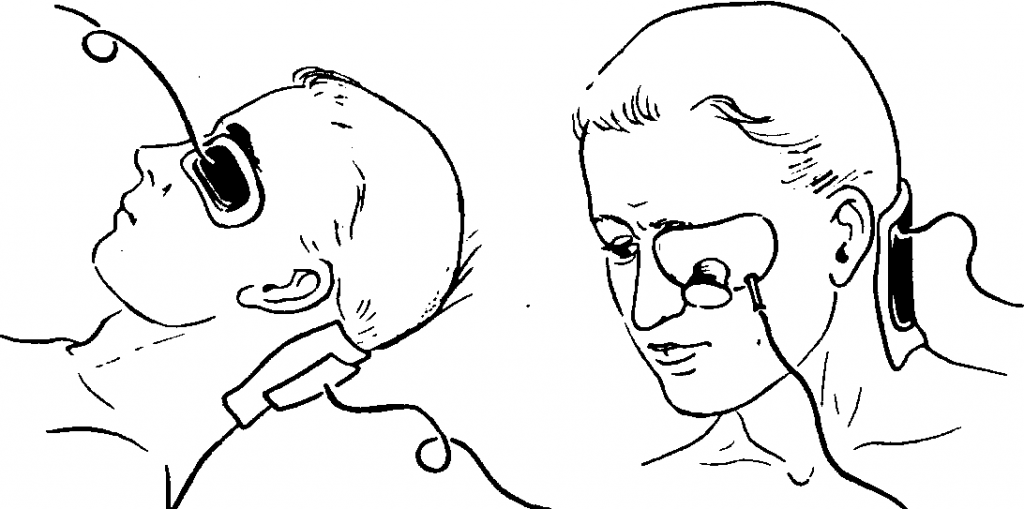 герпетический кератит глаза лечение