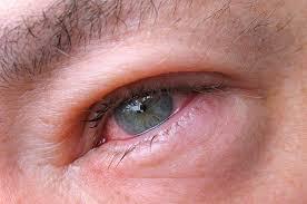 инфекции глаз симптомы