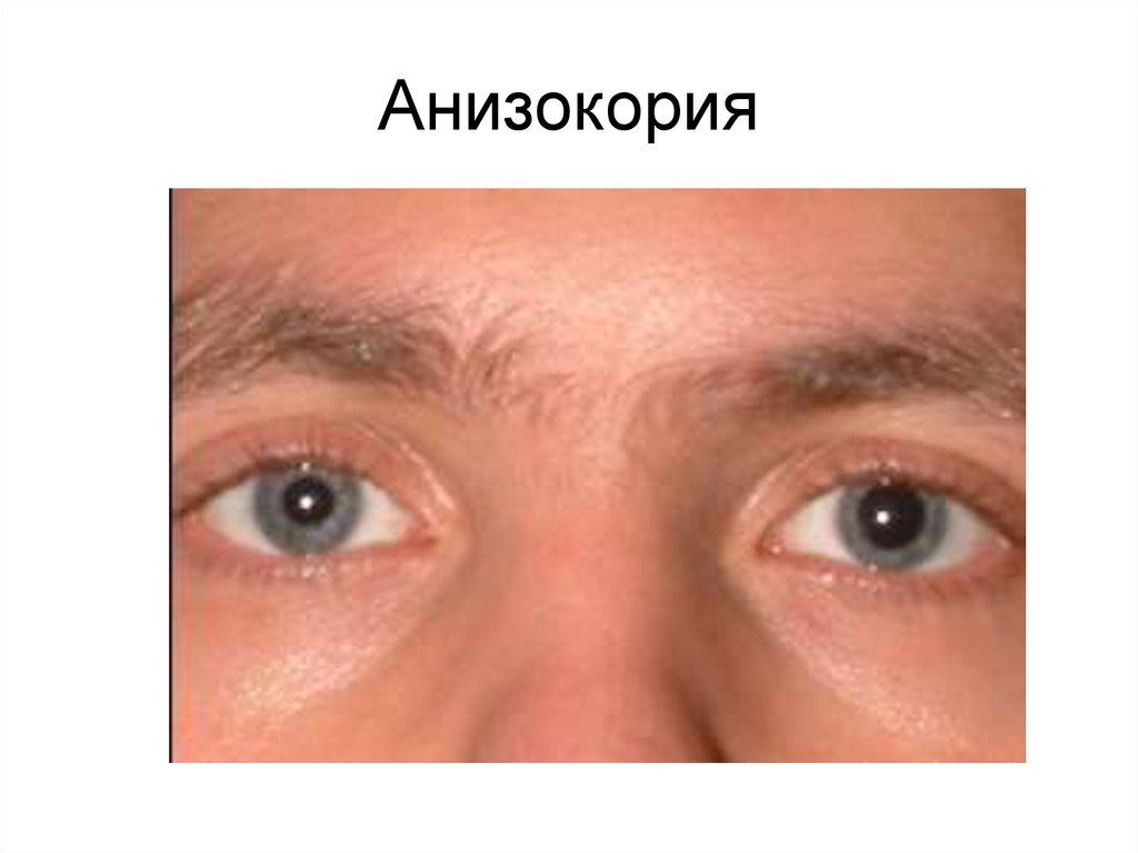 анизокория причины у взрослых