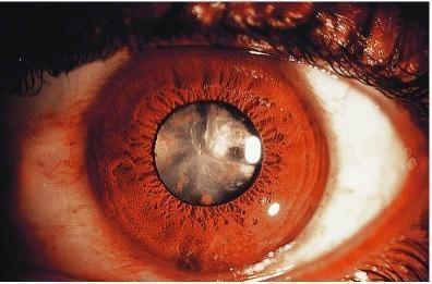 сидероз глаза