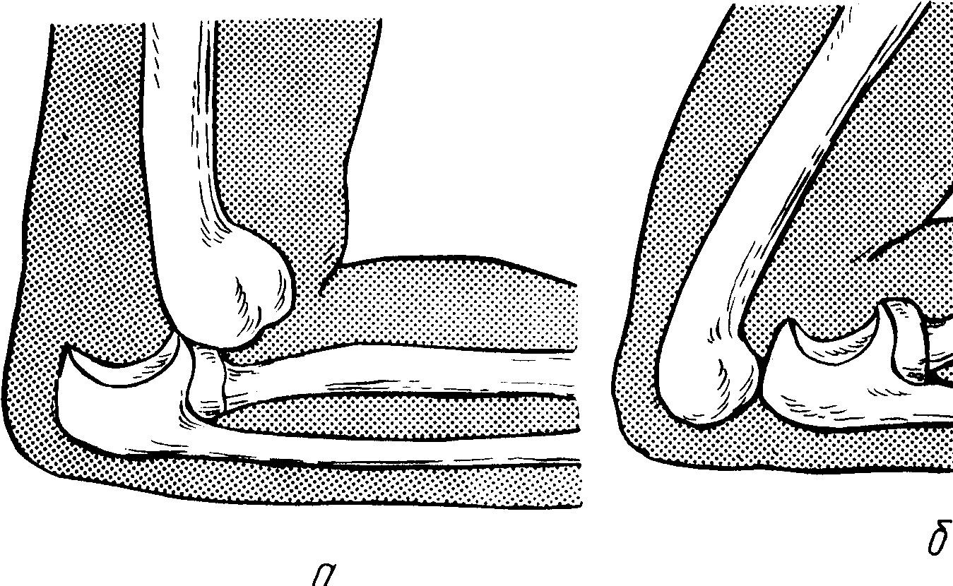 Причины получения вывиха сустава