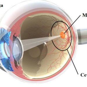 как лечить макулодистрофию сетчатки глаза