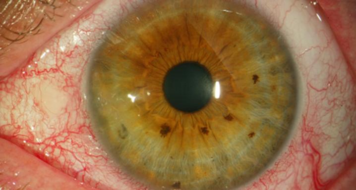 ретинит глаза