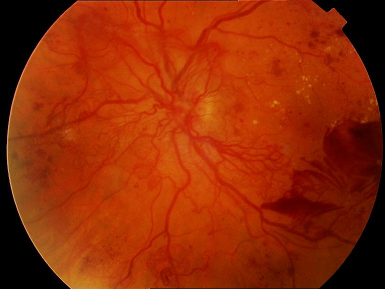 дибетическая ретинопатия это