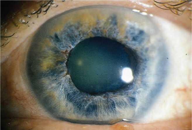 узкоугольная глаукома