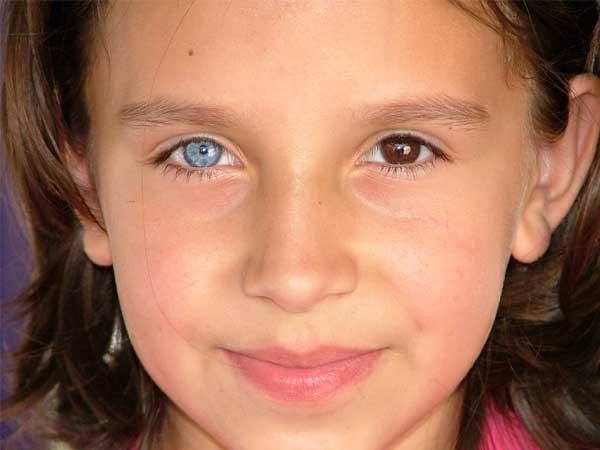 Почему у людей глаза разных цветов