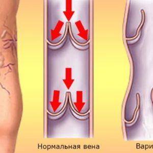 варикоз признаки болезни