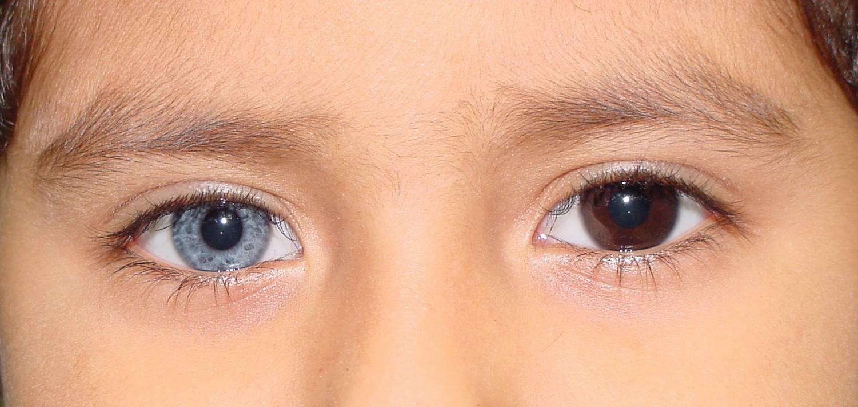 как называетя разный цвет глаз у человека