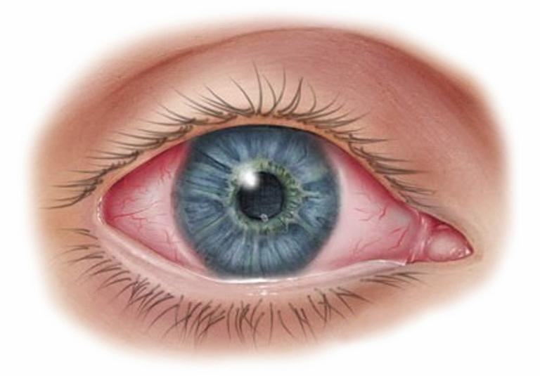 Заболевания глаз и их предотвращение