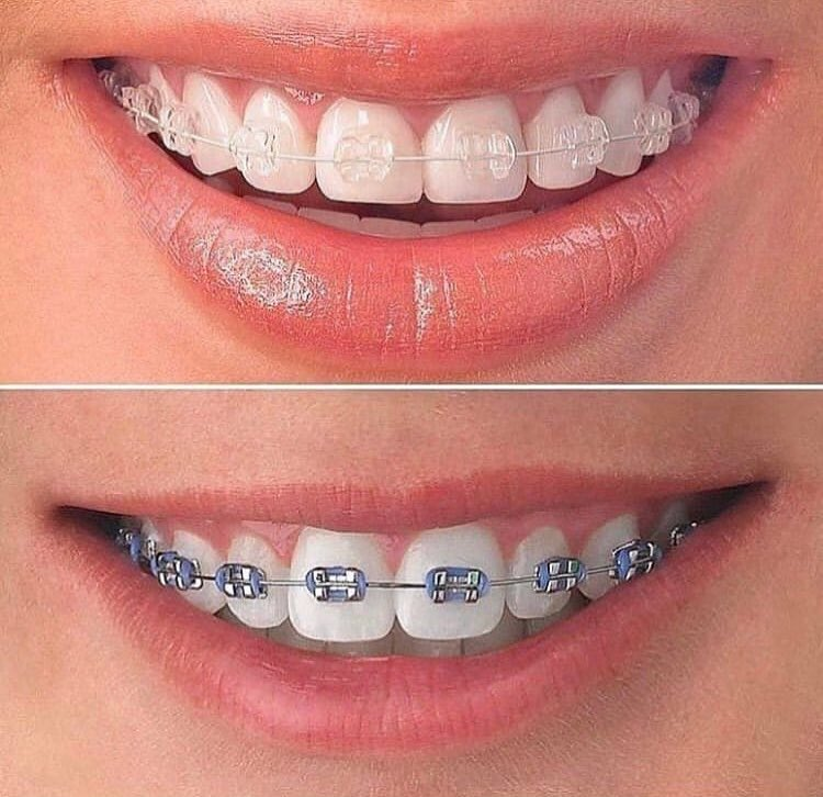 Выравнивание зубов с помощью брекетов