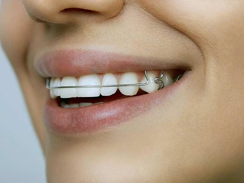выравнивание зубов специальными пластинами