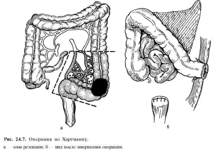Хирургическое лечение при раке толстой кишки